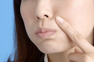 鼻ニキビの原因