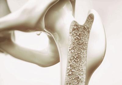 骨がスカスカ